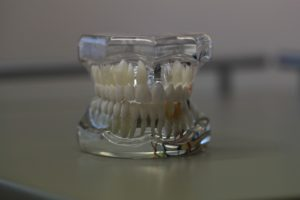 dentistry-668214_960_720