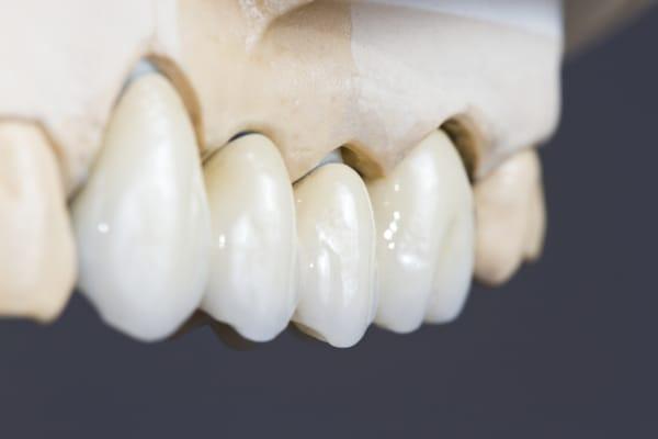 Dental Bridges Dentures General Dentist